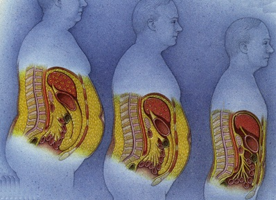 Where fat goes when you lose weight?